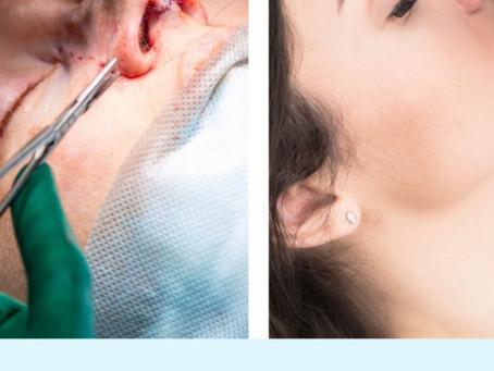 Rinoplastia ou Rinomodelação? Descubra qual o tratamento certo para o seu nariz