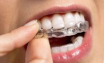 Dentistas-en-Mieres-Ortodoncia-retenedor