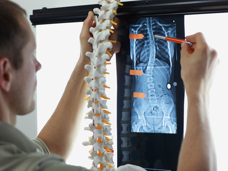 Disc Replacement Surgery May be the Answer for Chronic Back Pain