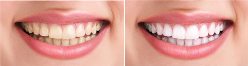 Teeth whitening indirapuram, white dental healthcare