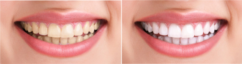 Teeth whitening indirapuram, white dental healthcare