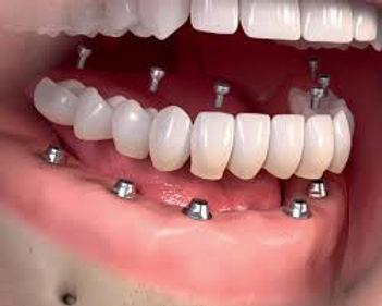 Implant Denture Indirapuram