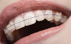 Ceramic braces White Denta 2