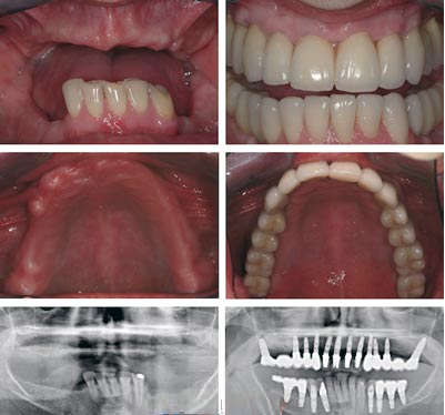 full mouth implant white dental.png