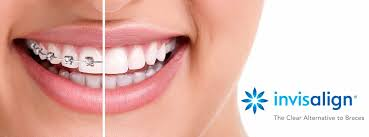 invisalign braces white dental