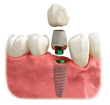 patient ed single implant2.png