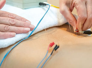 electro-acupuncture-therapyjpg-1000x430.