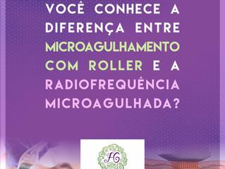 Microagulhamento com Roller X  Radiofrequência Microagulhada