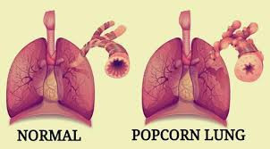 Sweet, Salty Popcorn....Lungs