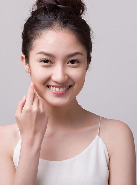 freckles melasma pigmentation