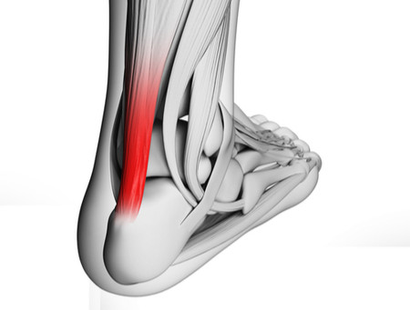 What You Need to Know About Achilles Tendonitis