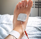 Electrical Signal Therapy