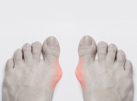 Bunions: What You Need To Know