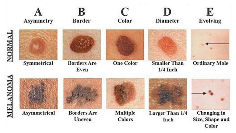 Skin Abc S