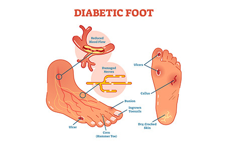 Diabetes & Foot Care: All You Need to Know