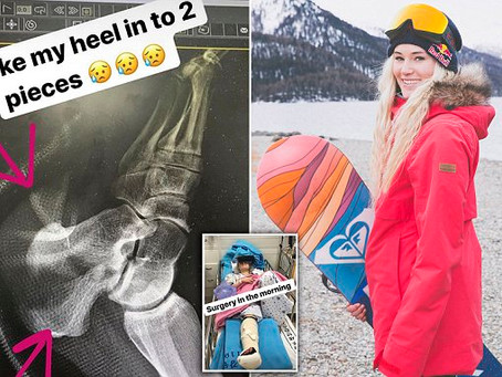 Heel Fracture Stops Olympic Athlete