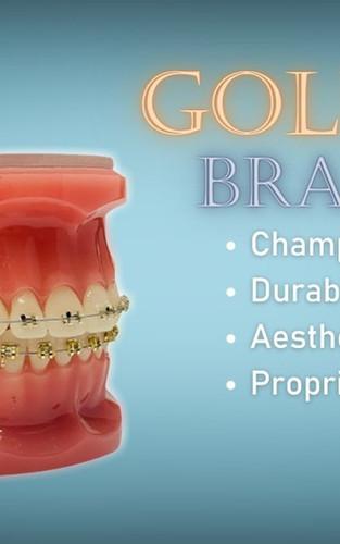 Gold Braces Treatment