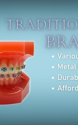 Braces in Rochester NY