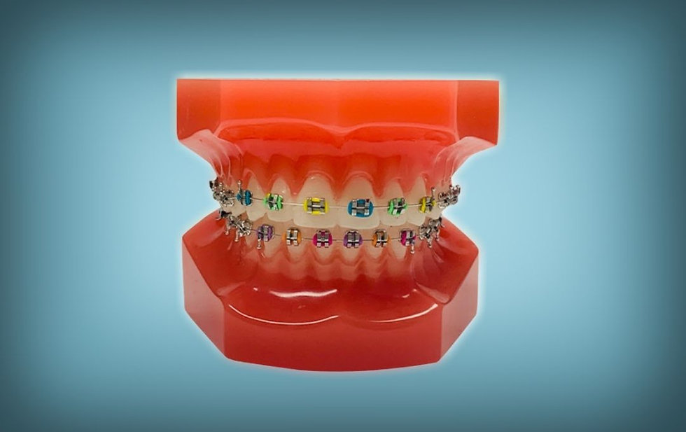 Braces available in Rochster