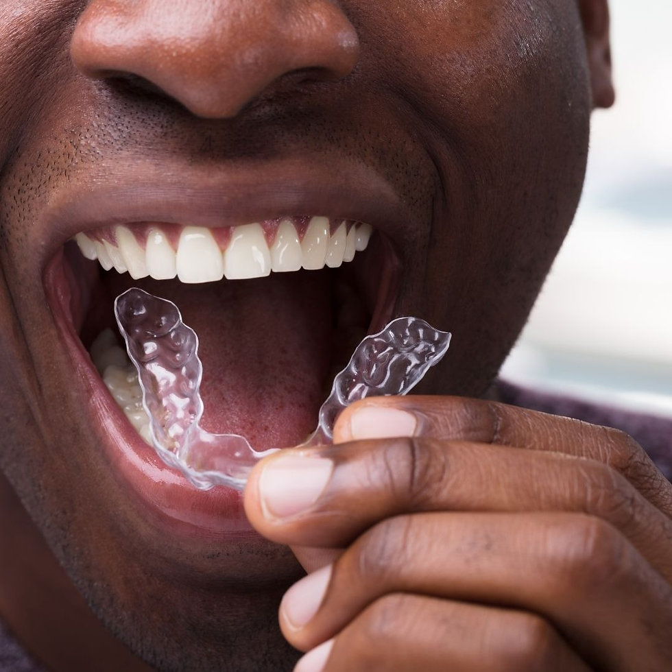 a male wearing invisalign aligners