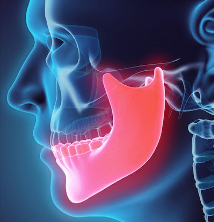 orthodontic surgical treatment