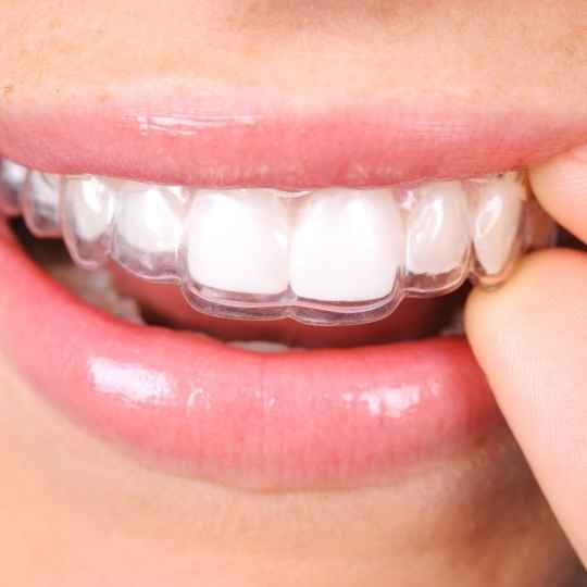 patient putting Invisalign in their mouth