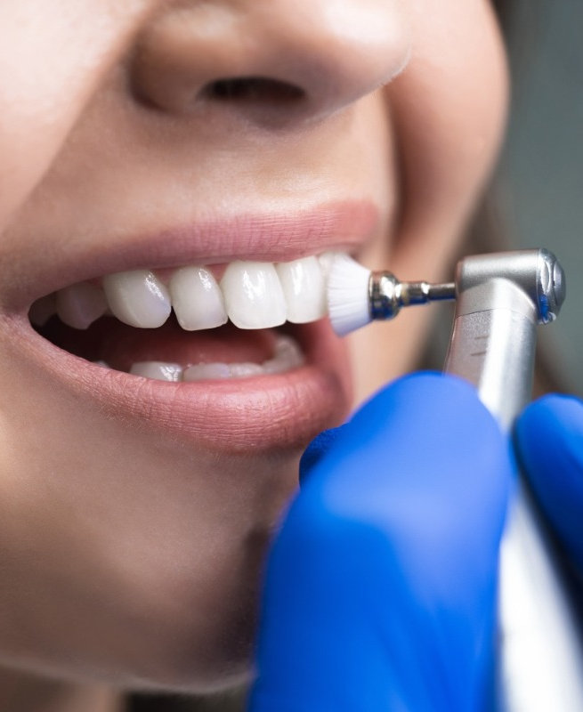 Teeth Cleaning Wentworth Point