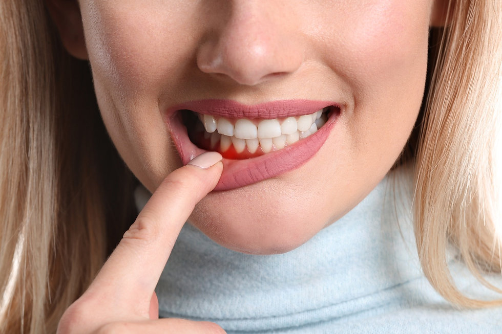 Gum disease treatment Wentworth Point