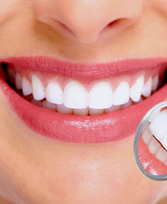 Teeth Whitening Wentworth Point