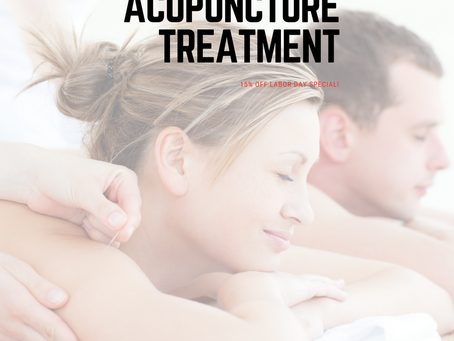 Relax Your Mind And Body With All Natural Acupuncture Treatment!