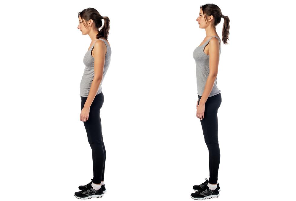 Improper versus proper posture when standing