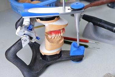 protesis_fijas.jpg