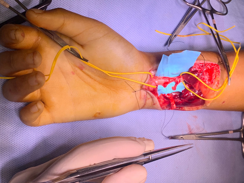 Reparación de lesiones nerviosas