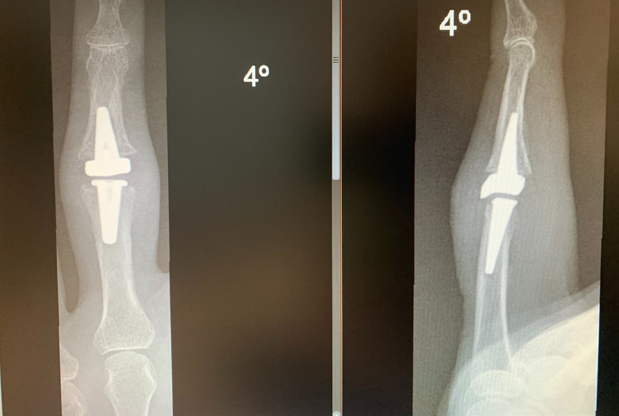 Protesis inferfalángica