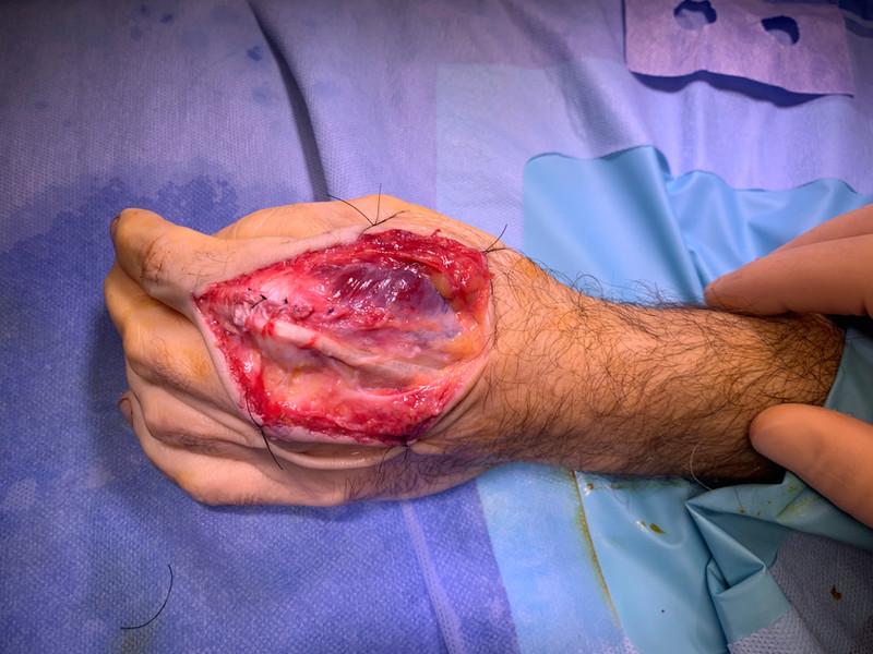 Reparación de tendones extensores