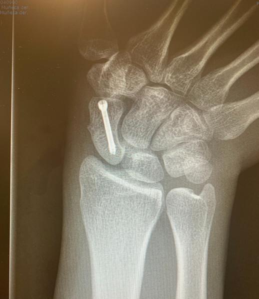 Fijación de fracturas de escafoides
