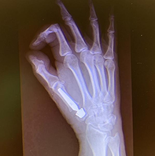 Protesis trapeciometacarpiana