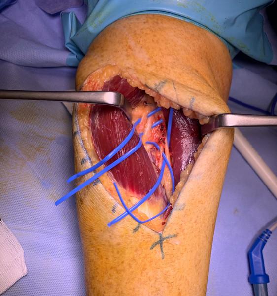 Liberacion nervio interóseo posterior