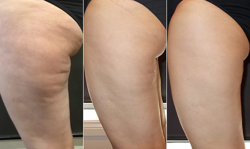 Fitskin-and-Beauty-cellulite-results-Fay
