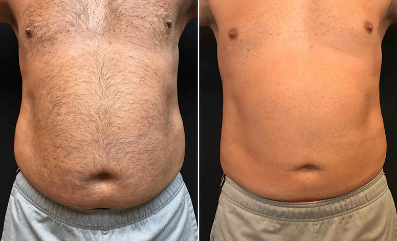 coolsculpting-sculpsure-belly-lovehandle