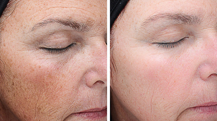 Vi-Peel-Pigmentation-Wrinkles.jpg