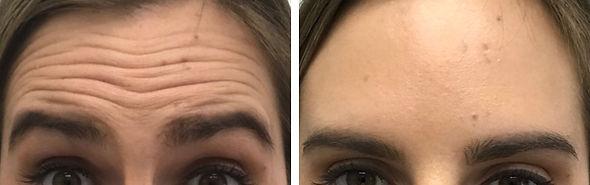 Forehead-Lines-Treatment4.jpg