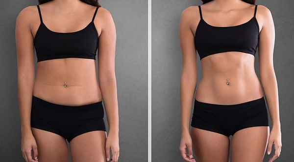hidef-liposuction1_edited.jpg