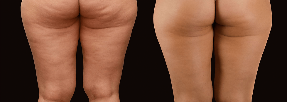 Cellulite-Removal.png
