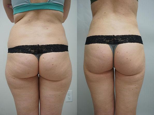 liposuction-266-view-1-detail.jpg