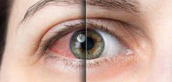 Desprendimiento de Retina - San Juan Ophthalmology Group