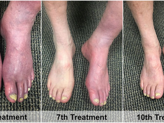 Phototherapy Neuropathy Results