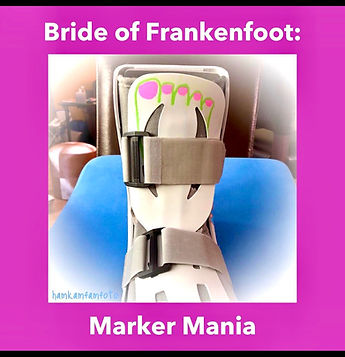 Frankenfoot_edited.jpg