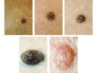 FTC Bars Skin Cancer Detection App