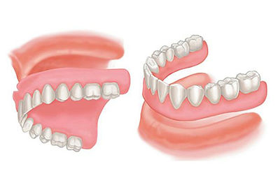 Affordable dentures for seniors looking to improve their smile. Complete dentures are one option for replacing missing teeth. If you struggle with loose dentures and have to use denture glue to keep them in place it may be time to get a new set of dentures